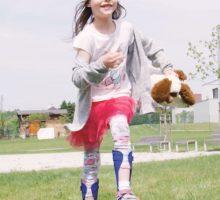 Comment l'impression 3D transforme la production de prothèses personnalisées
